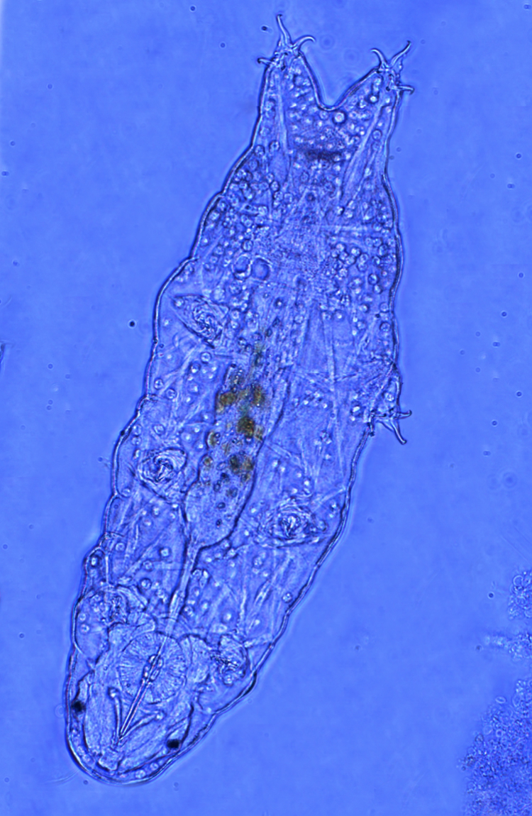 Tardigrade water bear 050617 composite (4)3 (1)